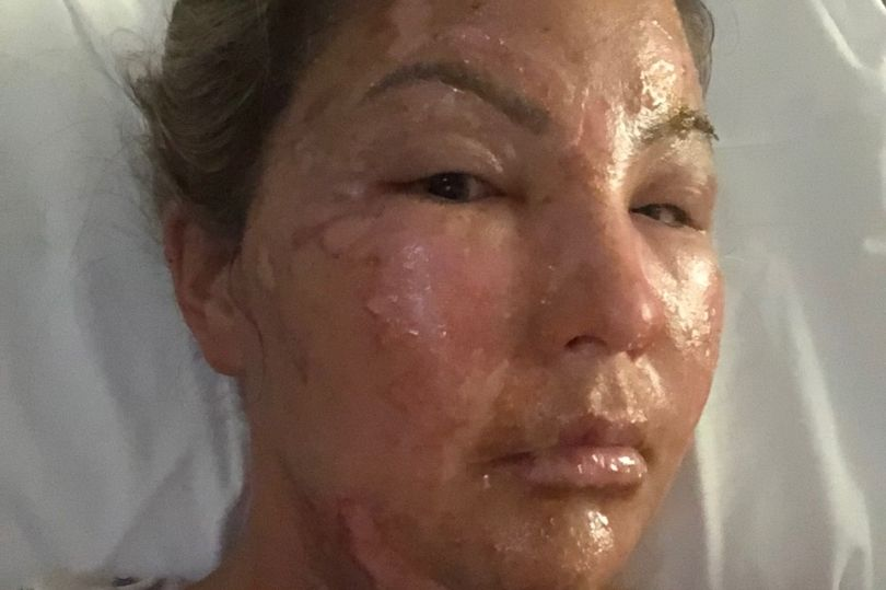 Photos: Horror! Woman Suffers Serious Burns As Her Hand Sanitiser Explodes While She Was Lighting A Candle